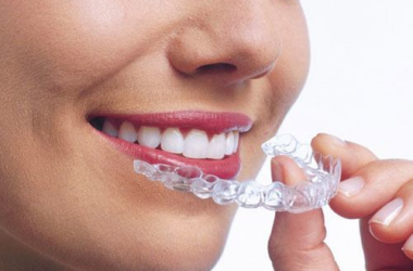 best invisalign in white plains ny
