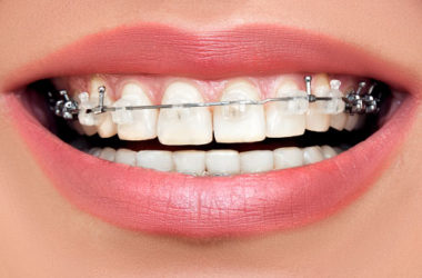 clear braces westchester county ny