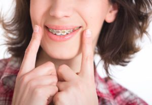 Orthodontist Near Scarsdale NY