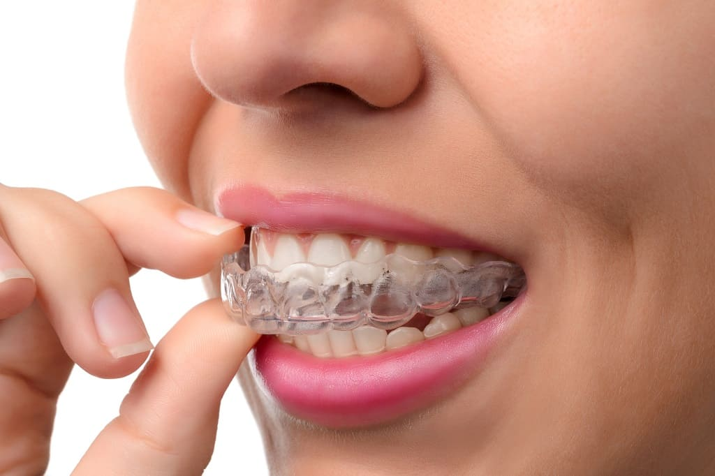 Invisalign White Plains NY